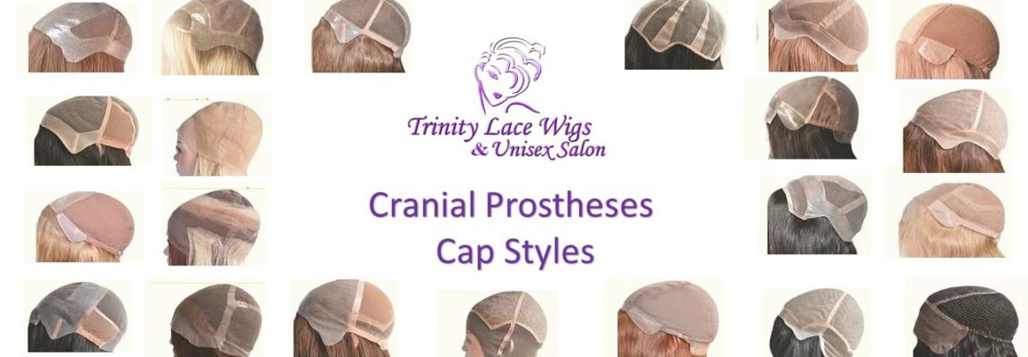 cranial prostheses